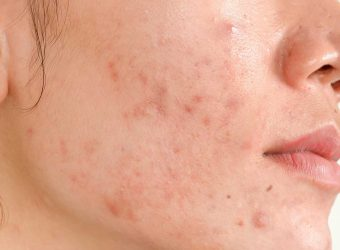How to Avoid Scarring from Acne