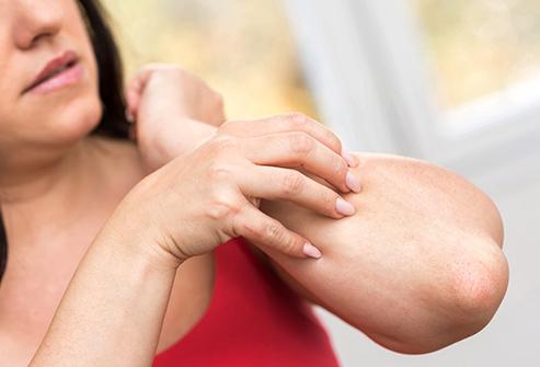 Skincare Issues – Eczema
