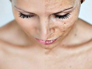 Make Your Face Even More A-Peel-Ing!