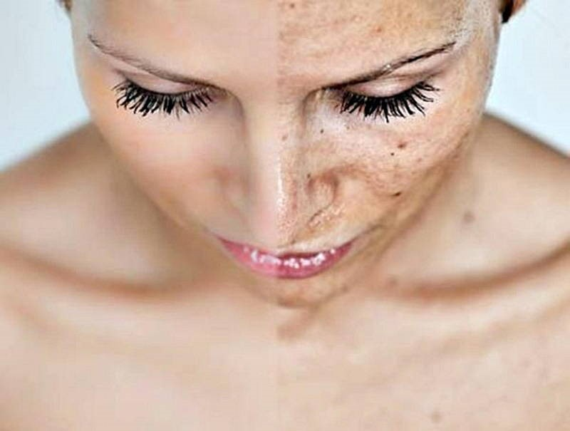 The Benefits of Home Peels and Exfoliators