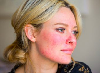 How to Cover Up Rosacea