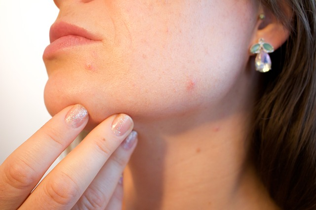 How to Minimise Your Acne Scars