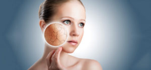 Changes to Make If You Suffer with Dry Skin