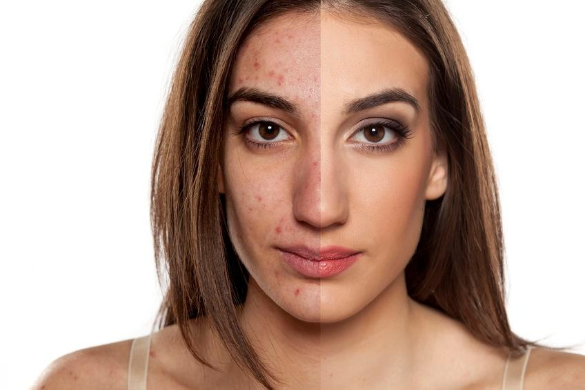 Dealing with Acne Scarring