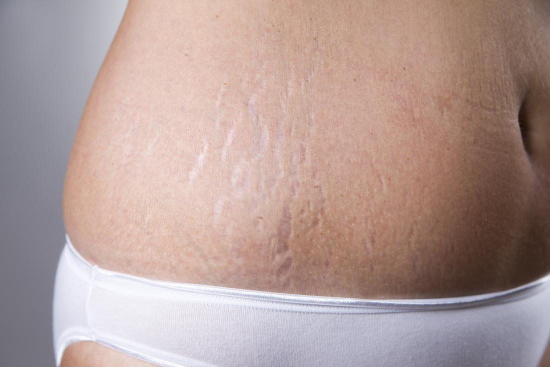 Can You Actually Get Rid of Stretch Marks?